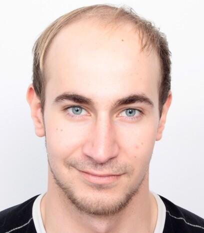 Ein männlicher Patient von Moser Medical  vor seiner Haartransplantation für volles Haar am Oberkopf