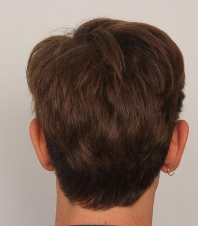 Der Entnahmebereich eines männlicher Patienten von Moser Medical vor der Haartransplantation mittels der FUE-Technik