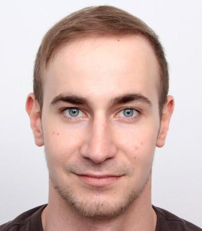Ein zufriedener Patient mit vollem Haar am Oberkopf dank der Haartransplantation von Moser Medical