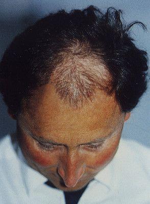 Ein Patient von Moser Medical vor seiner Haartransplantation vor 20 Jahren