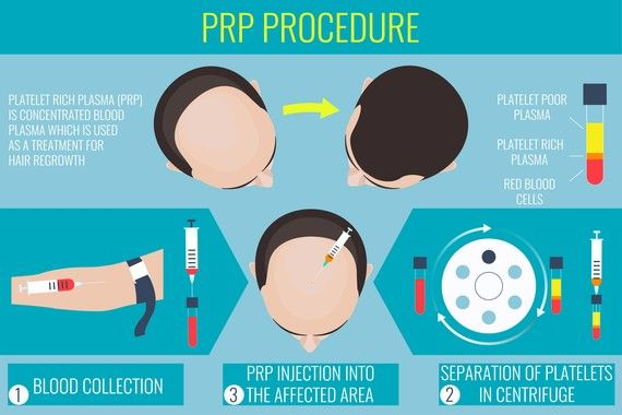 Prozess der PRP Therapie von Moser, welche bei Haarausfall verwendet wird