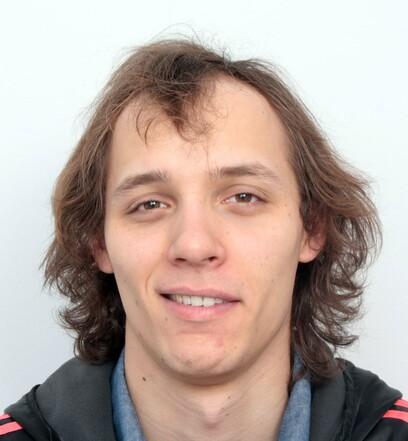 Ein Patient von Moser Medical bevor er gemeinsam mit seinem Zwillingsbruder eine Haartransplantation machen ließ