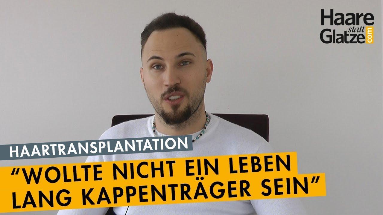 FUE-Patient von Moser Medical über Haartransplantation