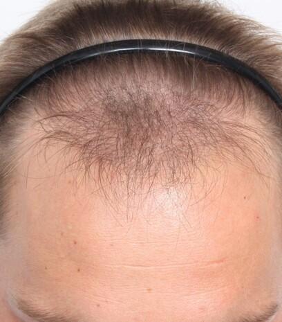 Ein Patient von Moser Medical vor den drei Behandlungen an den Geheimratsecken, dem Oberkopf und der Tonsur