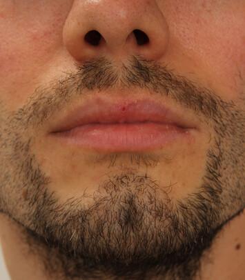 Ein zufriedener Patient nach der Bartverpflanzung mittels FUE-Technik von Moser Medical