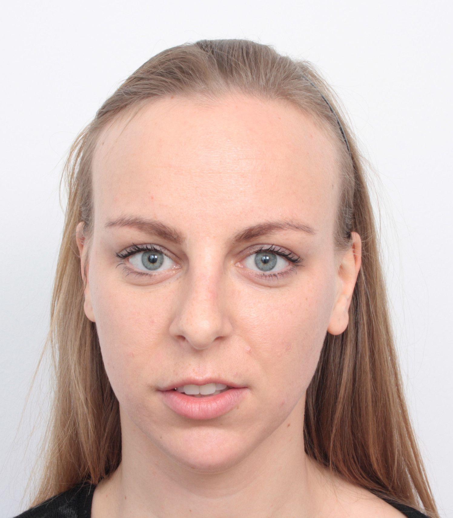 Haarverpflanzung Bei Frau Mit Hoher Stirnhaargrenze Vorher Nachher