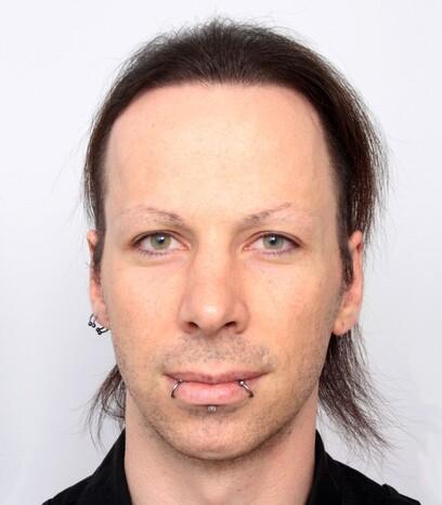 Ein zufriedener Patient von Moser Medical nach seiner Haartransplantation männlichen Patienten mit längeren Haaren
