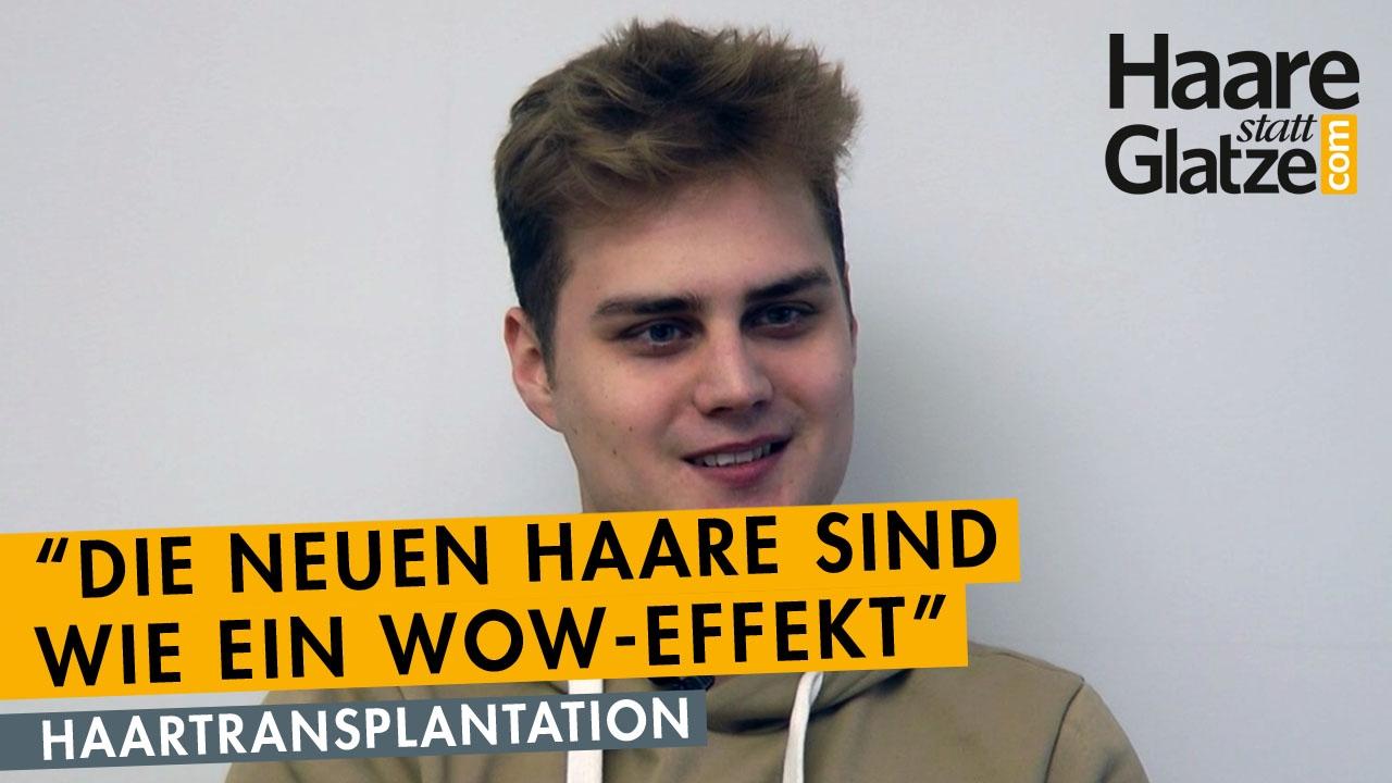 Erfahrungsbericht: Junger Patient hatte Haartransplantation