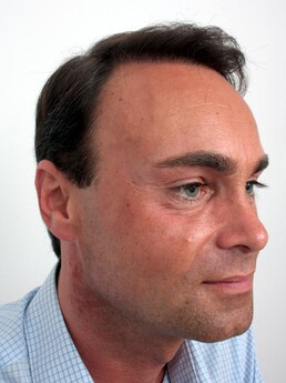 Martin Nussbaumer nach der Behandlung