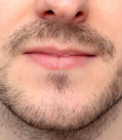 Ein Patient von Moser Medical vor seiner Bart-Haartransplantation in Wien