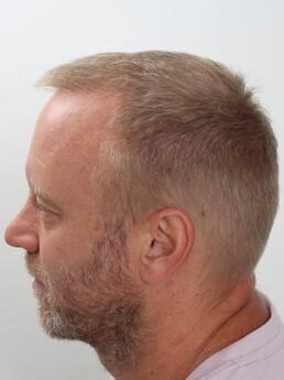 Stefan Koubek nach der Behandlung