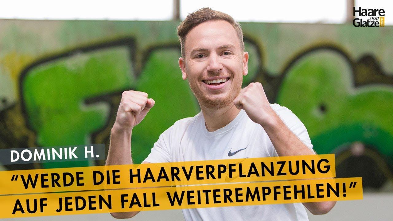 Dominik H. - Fußball-Profi stellt Ergebnis der Haartransplantation in Wie bei Moser Medical vor