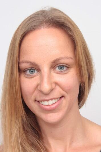 Sabrina T. dopo il trattamento