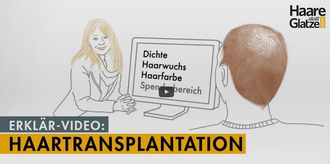 Haartransplantation in 3 Minuten