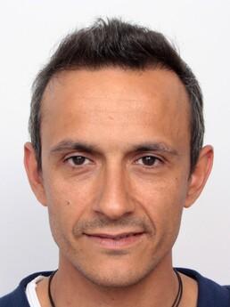 Freitas V. nach der Behandlung