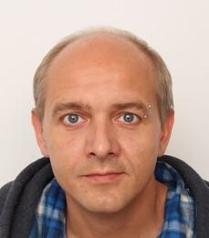 Hannes G. prima del trattamento