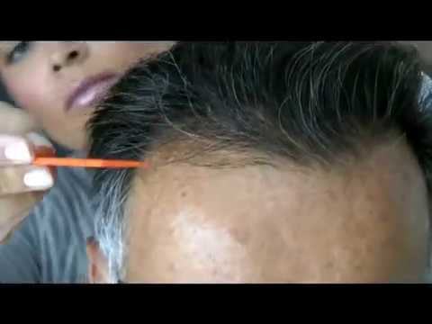 Haarverpflanzungen: Die Erfahrungen von Moser-Patient Josef Hackl