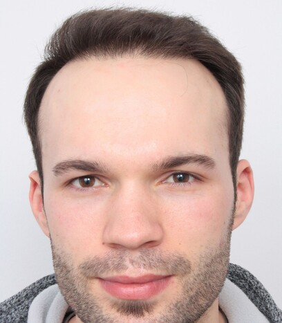 Ein Patient von Moser Kliniken nach der Verpflanzung von 2000 FUs bei den Geheimratsecken und der Stirn