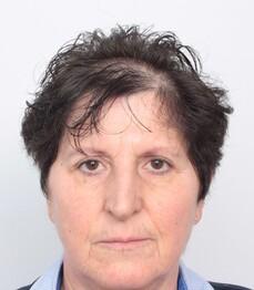 Eine Frau über 50 vor ihrer Eigenhaarverpflanzung am Haaransatz bei Moser Medical
