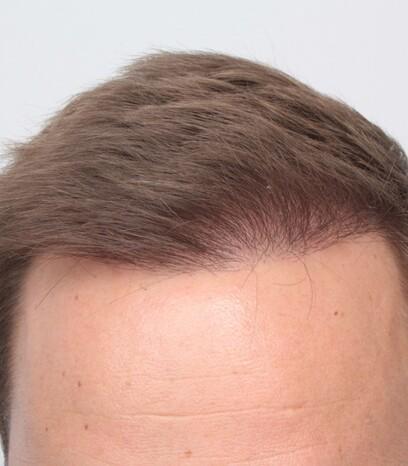 Ein Patient von Moser Medical nach den drei kleinen Behandlungen an den Geheimratsecken, dem Oberkopf und der Tonsur