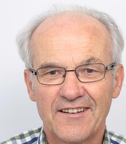 Ein Musiker über 50 vor seiner Haartransplantation bei Moser Medical