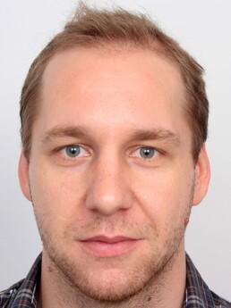 Vassil Nikolov vor der Behandlung