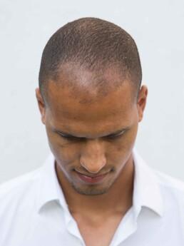 Christian Schoissengeyr vor der Behandlung