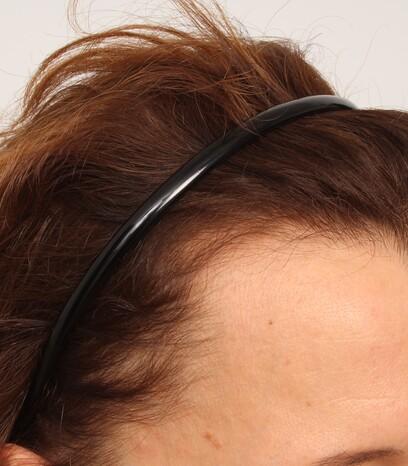 Eine weibliche Patientin über 50 vor ihrer Haartransplantation bei Geheimratsecken von Moser Medical