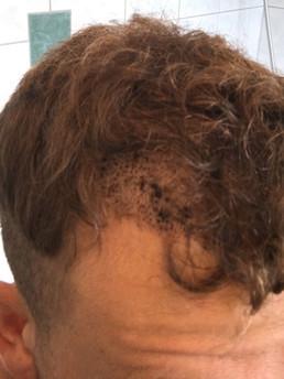 6 Tage nach der FUE-Behandlung