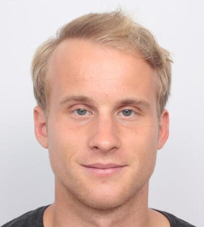 Der österreichische Olympiateilnehmer Hanno Douschan nach seiner Haartransplantation an den Geheimratsecken bei Moser Medical