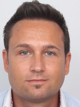 Michael Werner nach der Behandlung