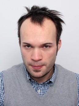 Daniel Schiefer vor der Behandlung