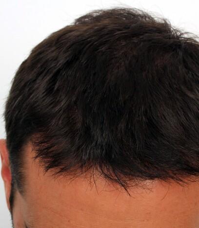 Das Ergebnis nach einer Eigenhaarverpflanzung im Stirnbereich und bei der Tonsur von Moser Medical