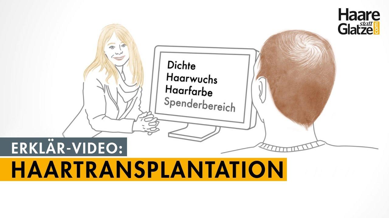 Haartransplantation in 3 Minuten. Das Erklärvideo für Patienten.