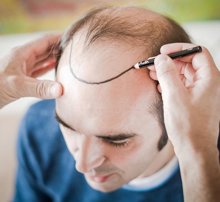 Haartransplantation: Einzeichnen der späteren Haarlinie bei einem Patienten
