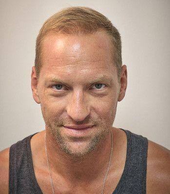 Alexander Horst dopo il trattamento