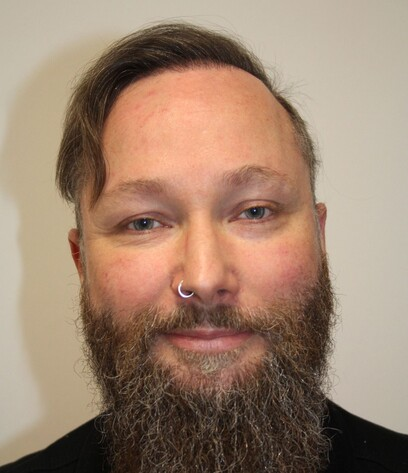 Ein Mann nach seiner gelungenen Haartransplantation im Stirnbereich bei Moser Medical