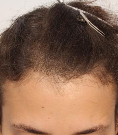 Eine Frau vor ihrer Haartransplantation der Geheimratsecken bei Moser Medical