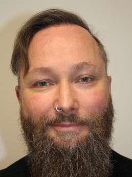Thomas K. dopo il trattamento