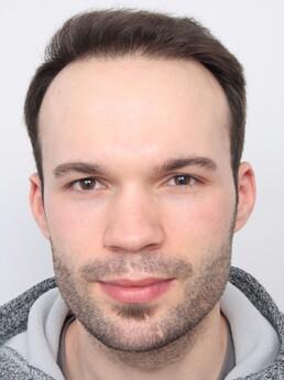 Daniel Schiefer nach der Behandlung