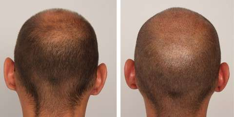 Photos: 6 Days after FUE Treatment