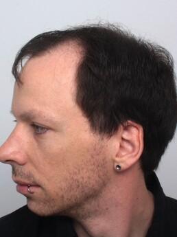 Florian Dürauer vor der Behandlung