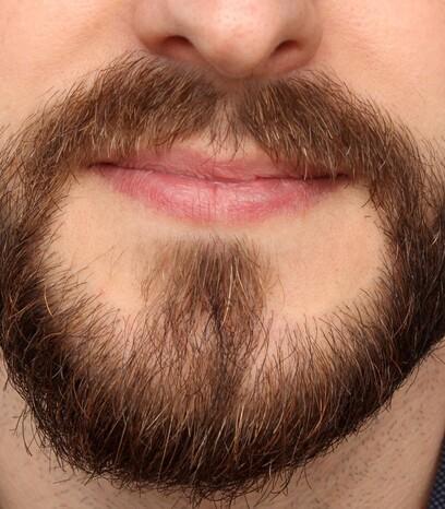 Ein Patient von Moser Medical nach seiner Bart-Haartransplantation in Wien