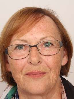 Edith W.  dopo il trattamento