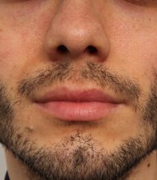 Ein Patient von Moser Medical vor der Bartverpflanzung mittels FUE-Technik