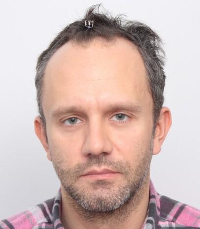 Ein Patient vor seiner Haartransplantation bei Moser Medical in Wien
