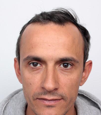 Ein Patient von Moser Medical vor der Haarverpflanzung bei Geheimratsecken
