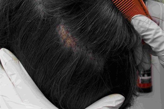 Longhair FUE Haartransplantation