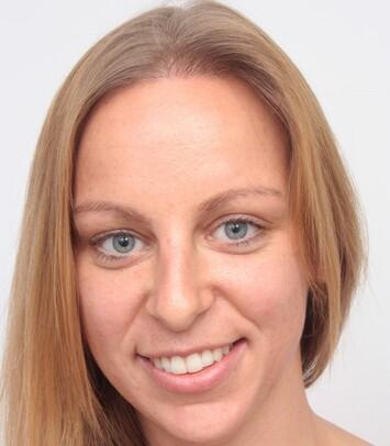 Eine junge Frau nach ihrer Haartransplantation bei hoher Stirnhaargrenze von Moser Medical