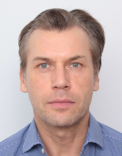 Ein Patient von Moser Medical vor seiner Haartransplantation an den Geheimratsecken